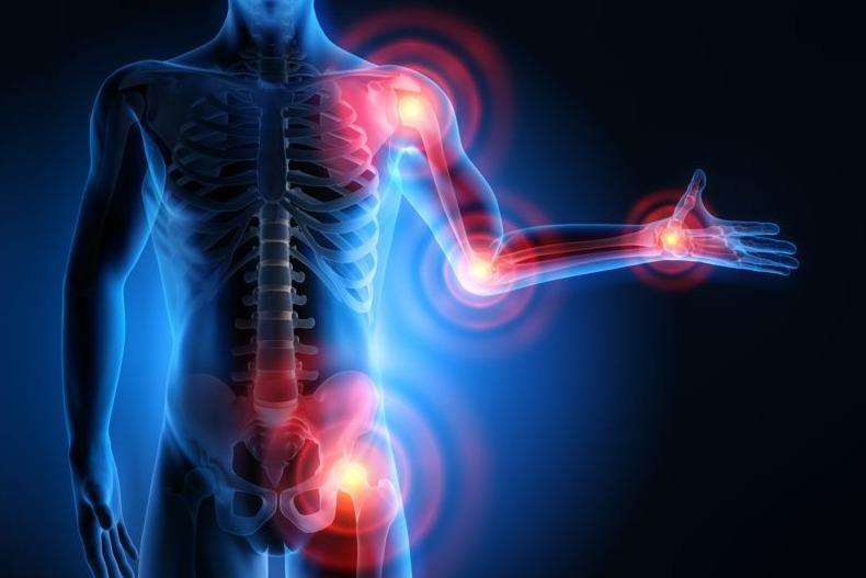 Rheuma erkennen und richtig behandeln